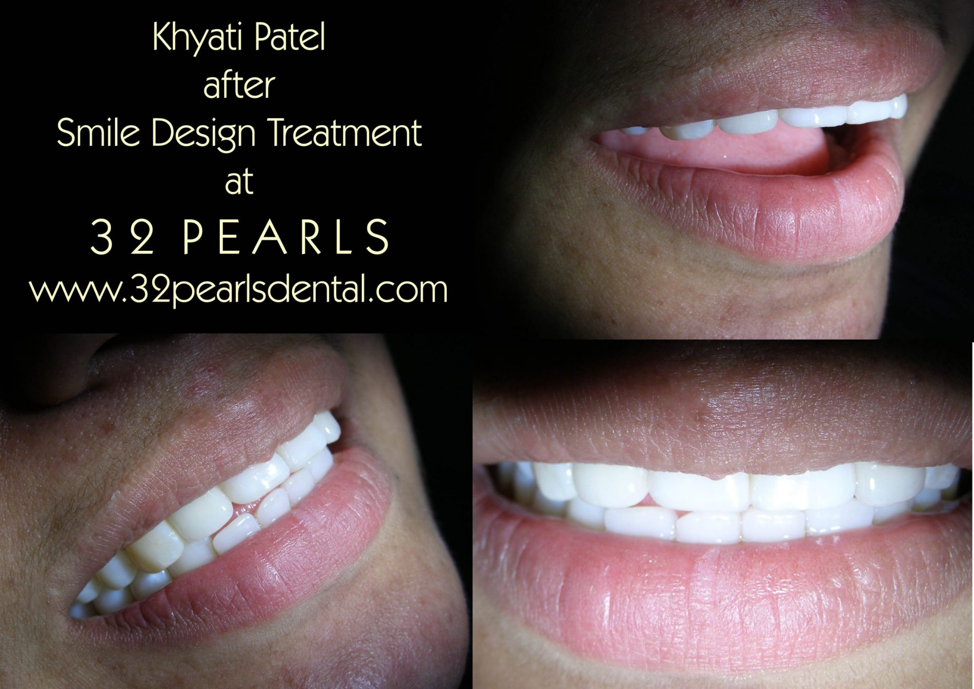 smile design treatment