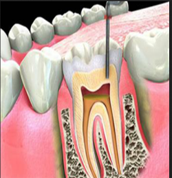 single-sitting-root-canal-treatment